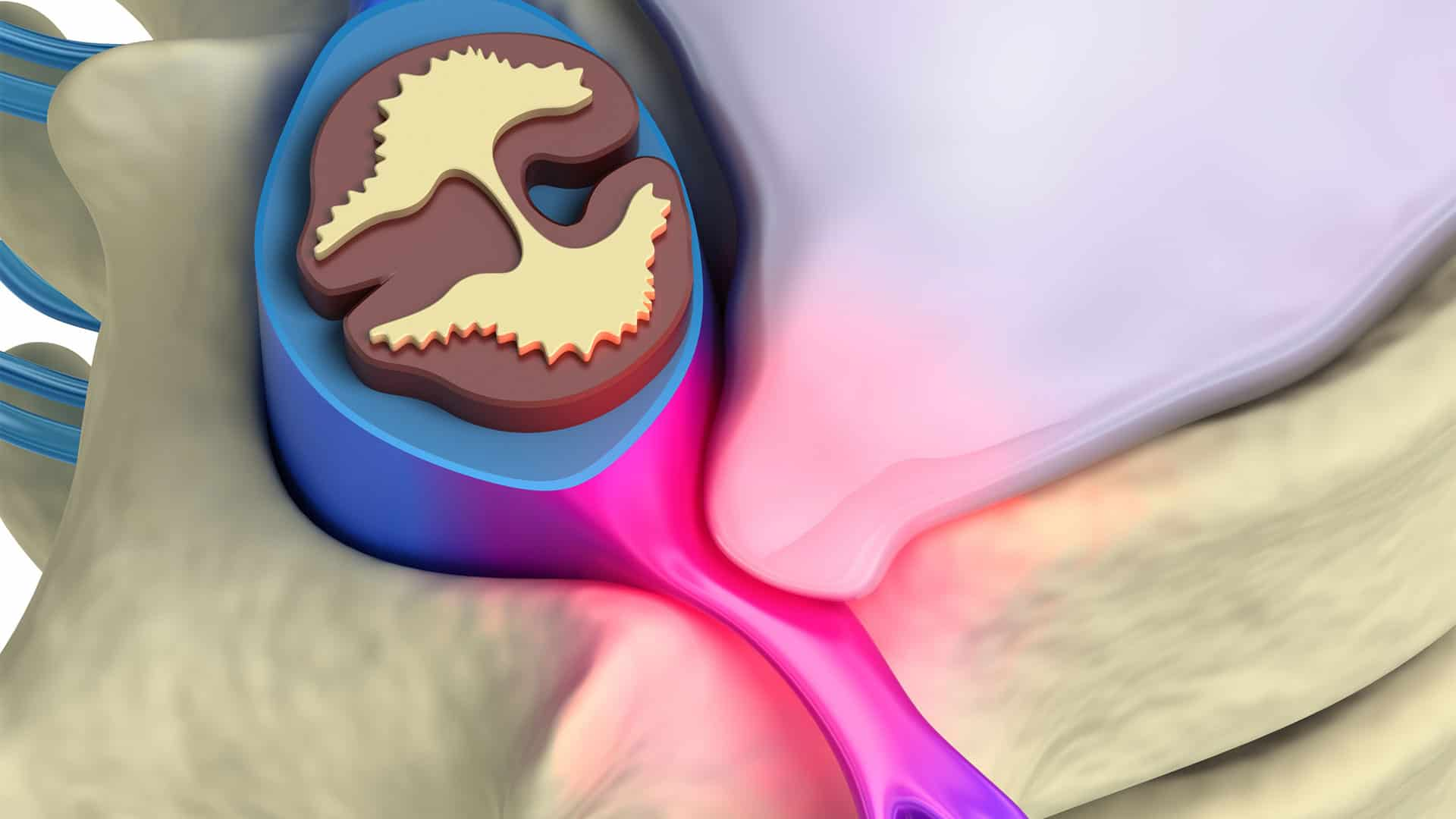 Do-You-Suffer-From-These-Bulging-Disc-Symptoms