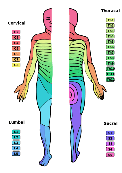 Map showing neck, mid back and lower back symptoms of a bulging disc